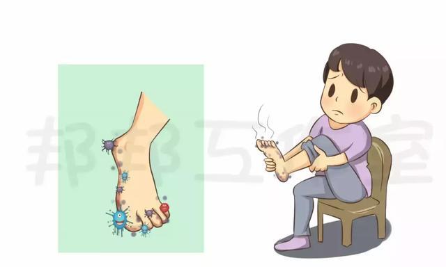 """""""脚气""""需要治疗吗?真的能彻底治好吗?"""